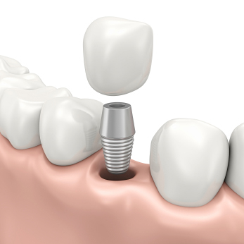 Dental Implants Everett, MA